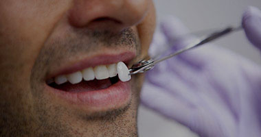 Cosmetic Dentist Port Elizabeth