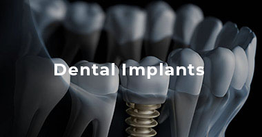 Dental Implants Port Elizabeth