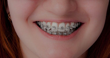 Orthodontics Port Elizabeth